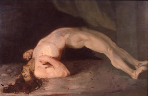 Opisthotonus in a patient suffering from tetanus - Painting by Charles Bell 1809