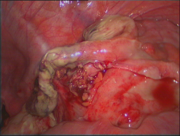 Intraoperative finding in a case with purulent acute appendicitis