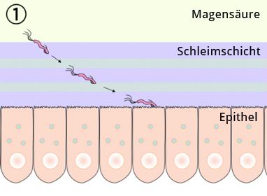 H.pylori durchbricht die Schleimschicht des Magens und setzt sich auf der Oberfläche der Epithelzellen fest