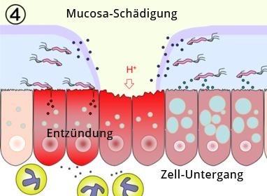 Das Ulcus wird durch Zerstörung der Mukosa, Entzündungs und Absterben der Mukosazellen erzeugt