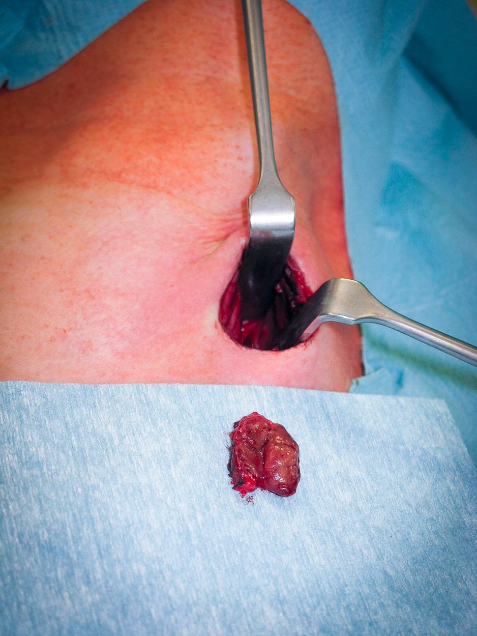 Parathyreoidektomie