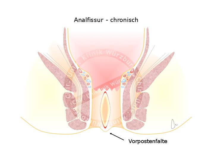 Chronische Analfissur