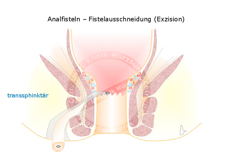 Excision der Fistel