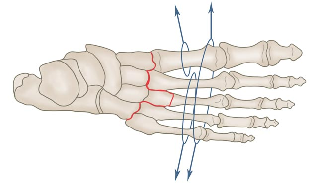 Lisfranc-Luxation