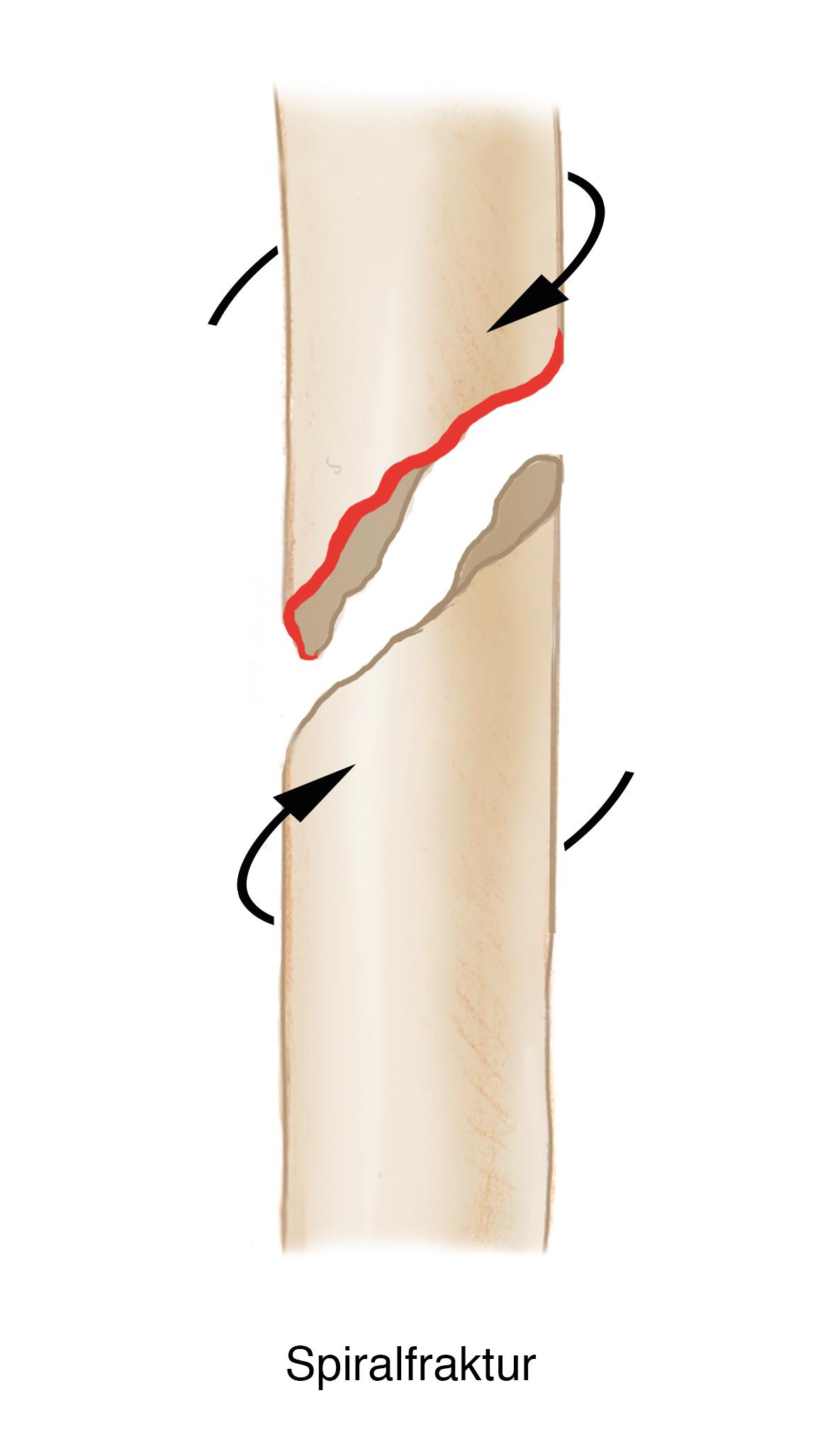 Spiralfraktur