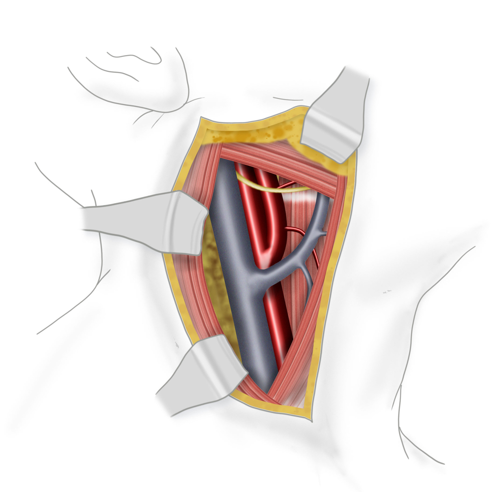 Carotisstenose
