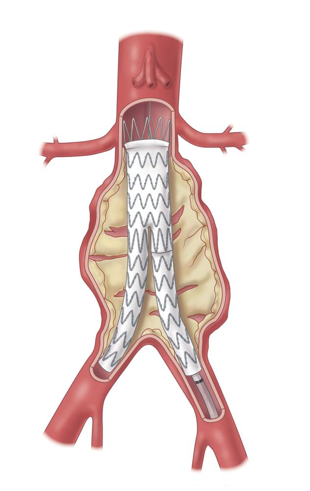 Aortenstent