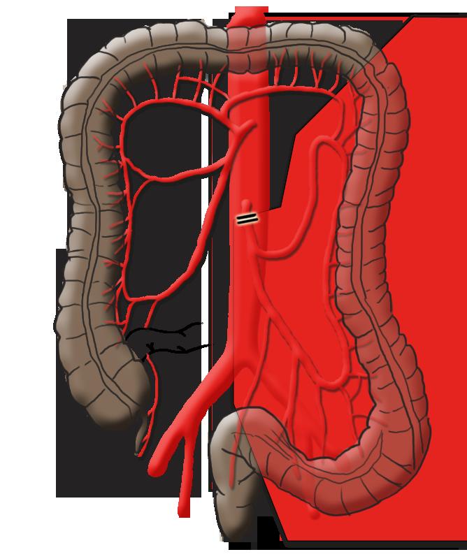 mySurgery | Colon carcinoma