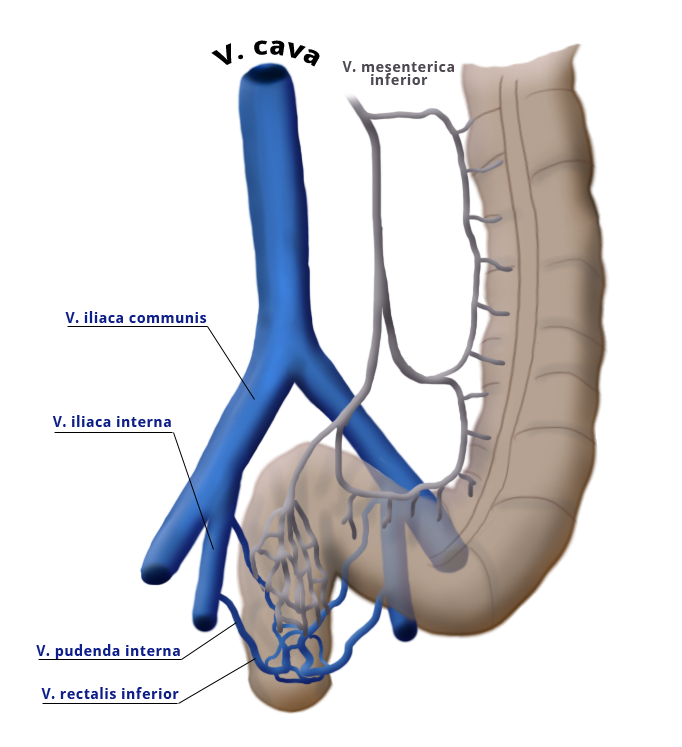 mySurgery | Rectal carcinoma